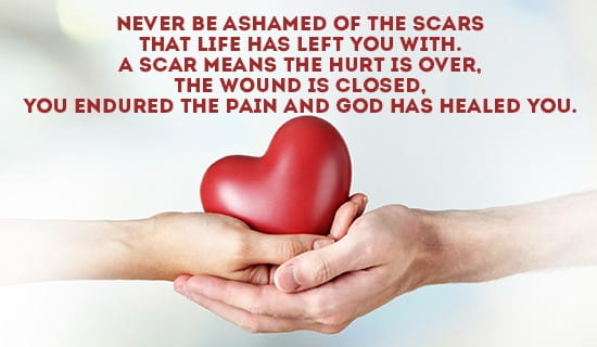 Never be ashamed of your scars... ecard, online card