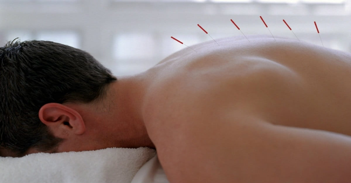 Is it Okay for Christians to Use Acupuncture?