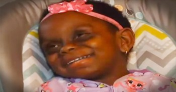 Cyber Bullies Call Toddler With Rare Disease A Monster