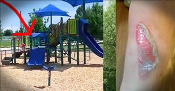 Mother's Summertime Slide Warning Needs To Be Shared