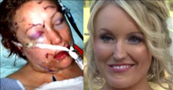 Woman Stabbed By Boyfriend, Marries EMT Who Saved Her And Gets Her Smile Back