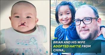 Man Adopts A Baby With Cleft Lip Just Like Him