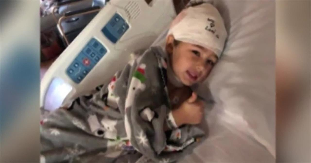 Parents Warn After 5-Year-Old Is Scalped By Go-Kart - Education Videos